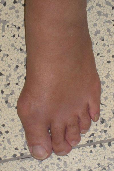 Hallux valgus des linken Fußes