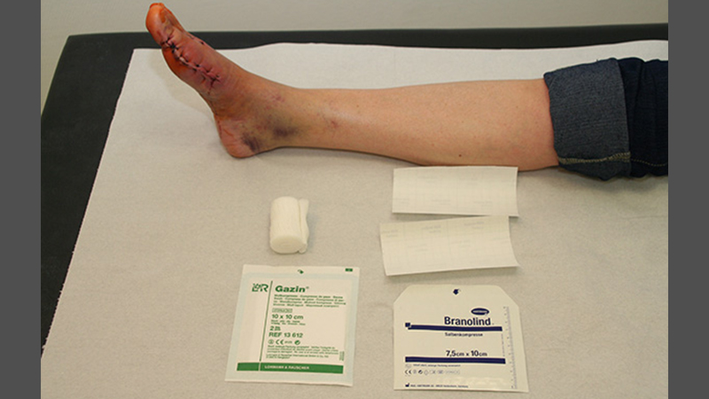 Materialien für Verband nach Operation des 1. Strahls