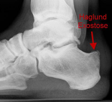 Seitliches Röntgenbilder der Ferse mit Haglundexostose.