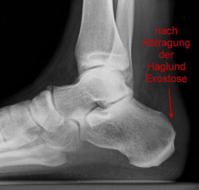 Röntgenbild nach Abtragung der Haglund-Exostose.