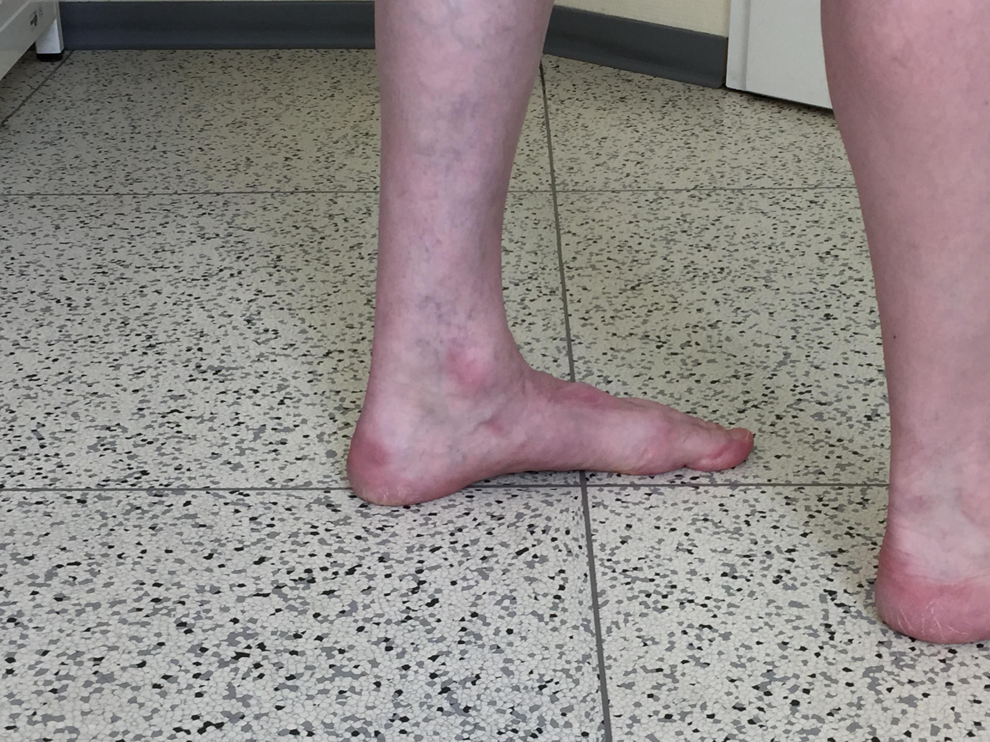 Linker Fuß mit etwas reduzierte aber immer noch normaler Fußwölbung.