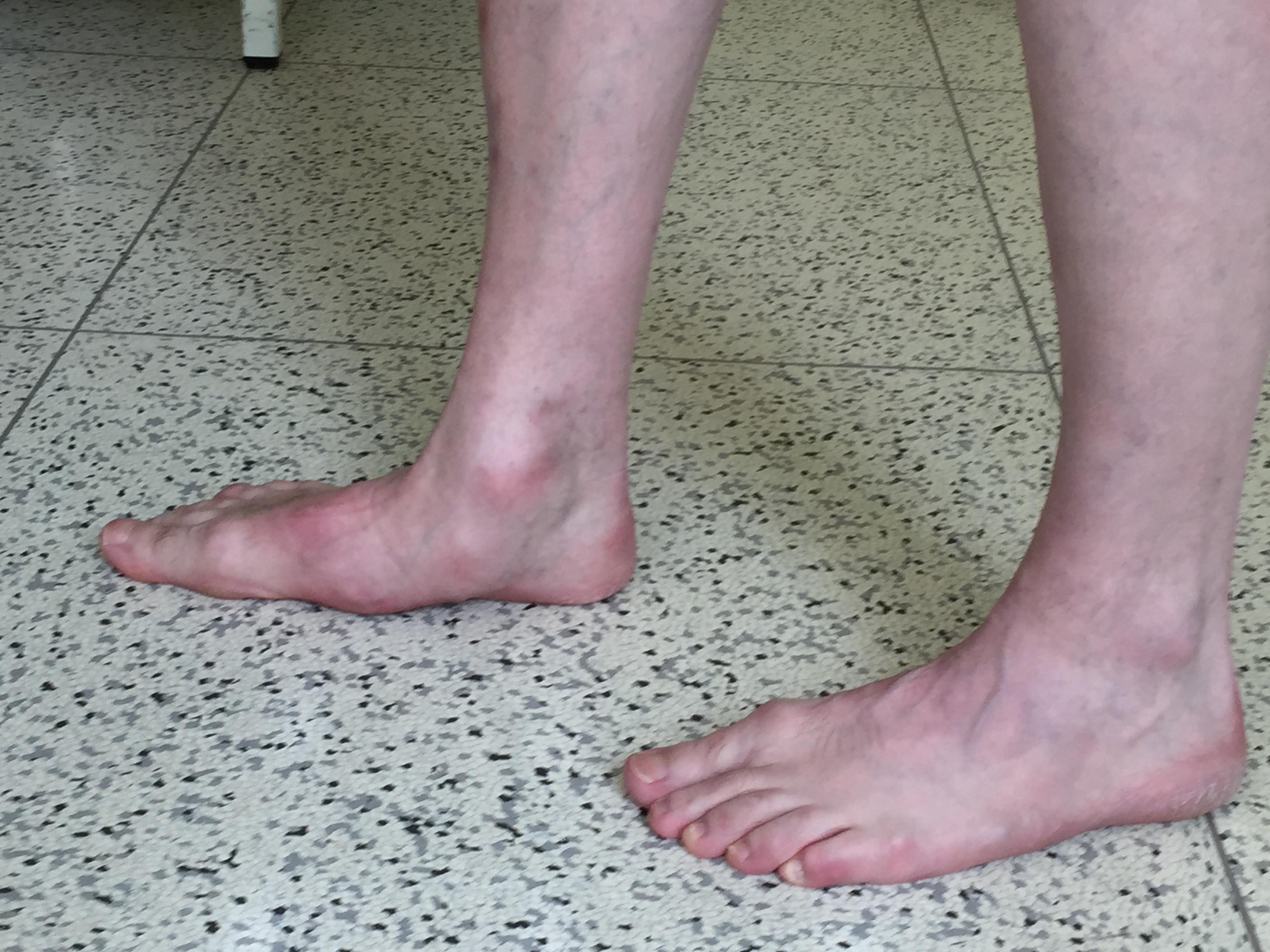 Ausgeprägter Knick-Senkfuß rechts mit Verlust der Fußwölbung.