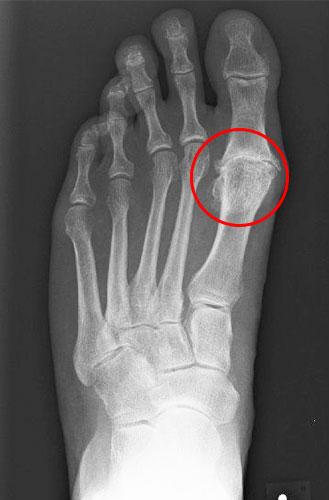 Röntgenbild fortgeschrittene Arthrose Großzehengrundgelenk