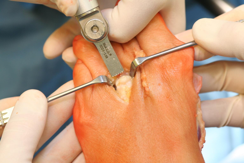 Durchtrennung des Knochens mit der oszillierenden Präzisionssäge parallel zur Auftrittsfläche/zur Fußsohle.
