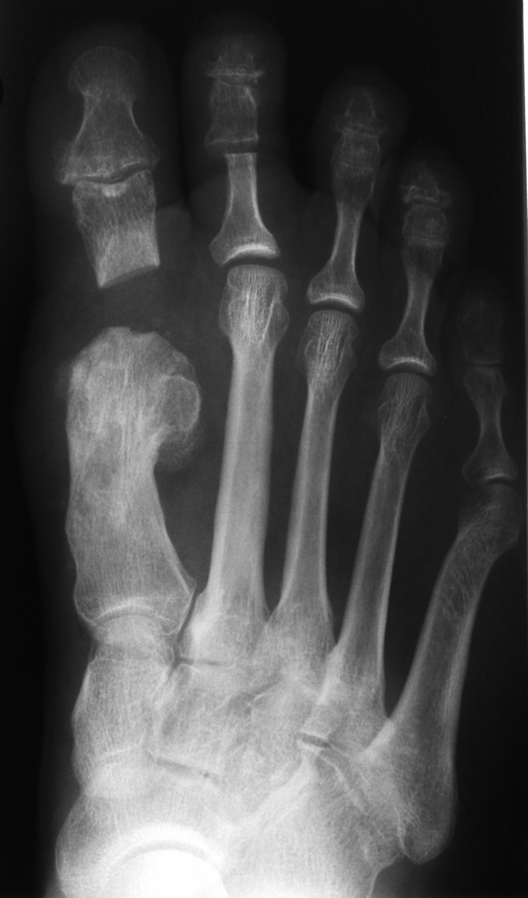 Im Röntgenbild deutliche Überlänge von MFK 2 und MFK 3 gegenüber MFK 1.
