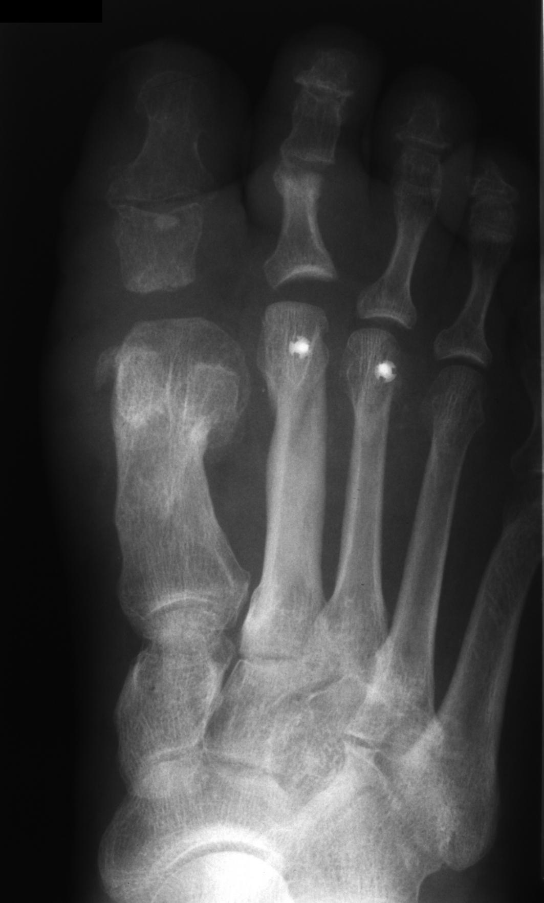 Verkürzung von MFK 2 und MFK 3 durch Weil-Osteotomie.