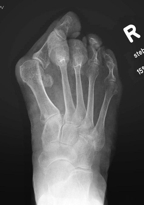 Röntgenbild Weil Osteomonie
