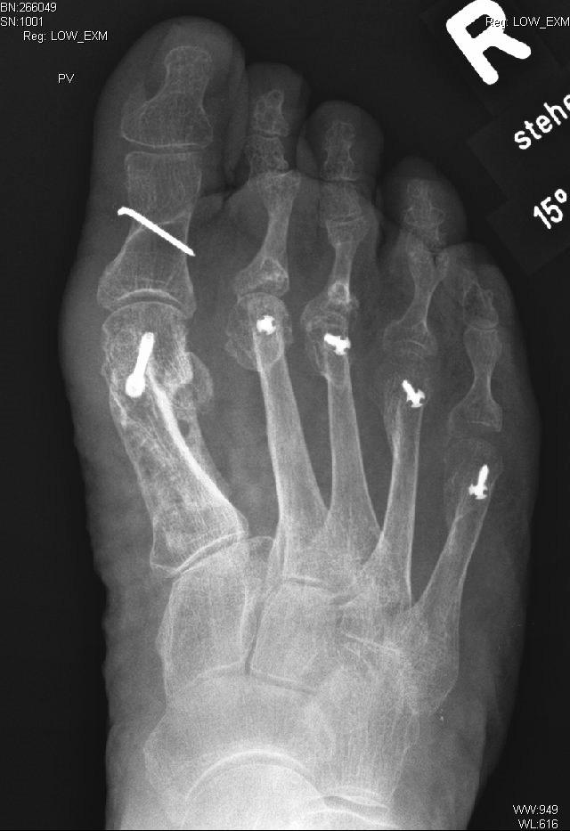 Dazugehöriges Röntgenbild nach komplexer operativer Vorfußkorrektur: Scarf-Osteotomie von MFK 1, Akin-Osteotomie D1, weichteilige Rezentrierung Großzehengrundgelenk, Weil-Osteotomie MFK 2 bis MFK5.