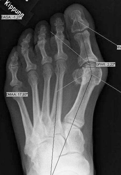 Röntgenbild schwere Hallux valgus Deformität