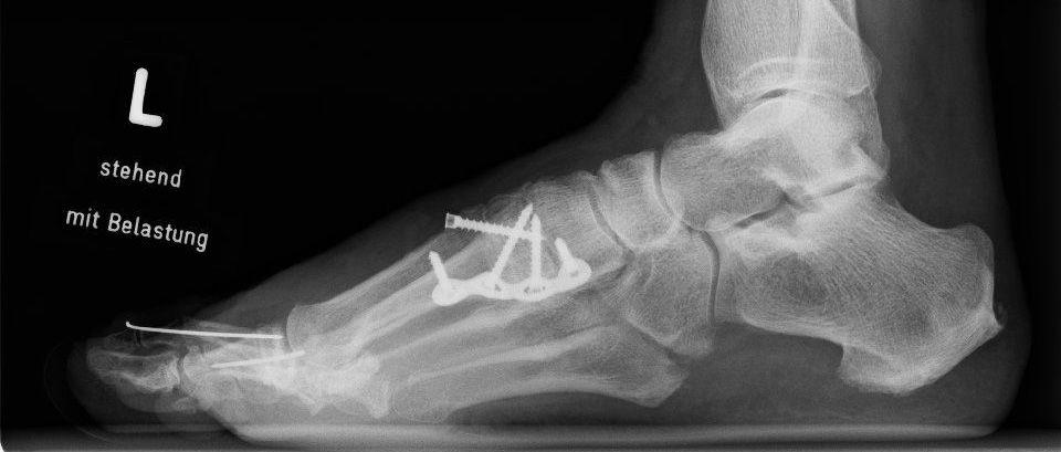 Seitliches Röntgenbild nach Lapidus-Arthrodese mit einer plantaren Platte