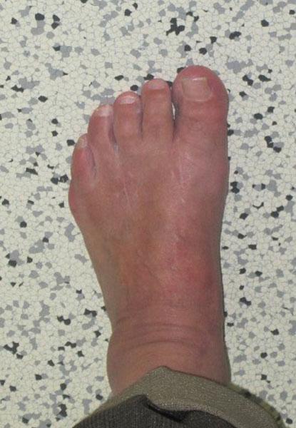 Klinisches Bild nach Lapidus-Arthrodese