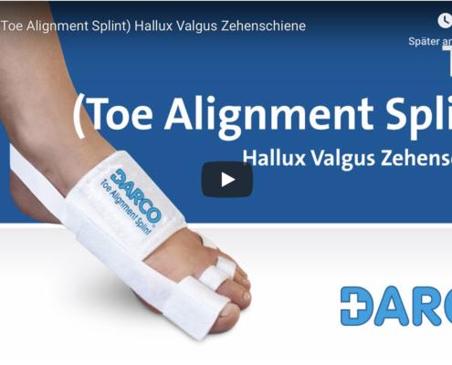 Toe Aligment Splin