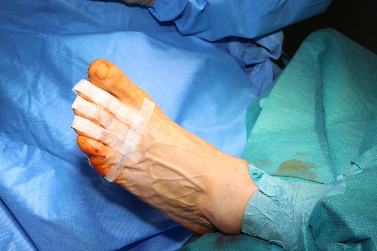Pflasterzügelverband. Dadruch werden die Zehen in ihrer Korrekturstellung gehalten.