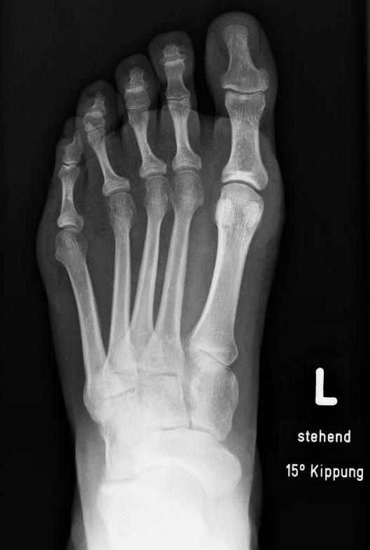 Im Vergleich dazu normales Röntgenbild mit gut erkennbarem Gelenkspalt des Großzehengrundgelenks