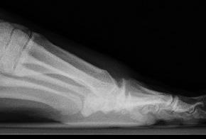 Röntgenbild nach operativer Abtragung der störenden Knochenausziehungen. Dadurch verbessert sich die Beweglichkeit des Gelenks