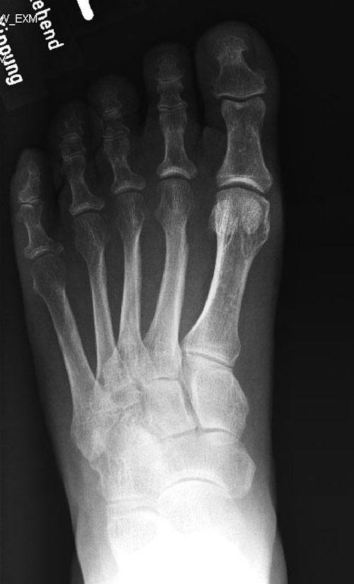 Initiales Röntgenbild: Keine Veränderungen sichtbar.