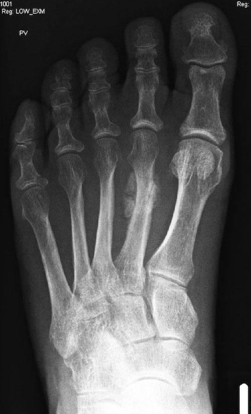 Röntgenbild nach 6 Wochen: Deutliche Knochenbildung im Bereich des 2. Mittelfußknochens, die Diagnose wird dadurch bestätigt!