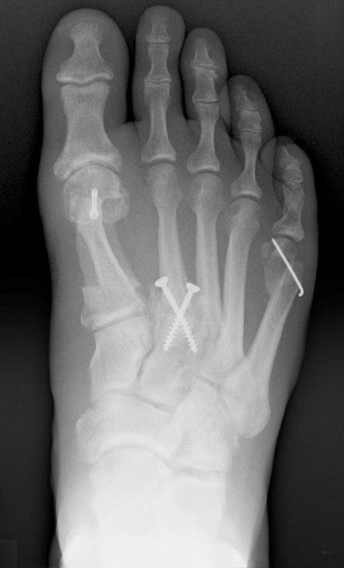 Röntgenbild nach Verschraubung der Ermüdungsfraktur des proximalen MFK2.