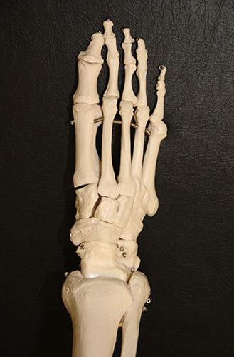 Fußskelett_Lisfranc-Gelenklinie_eingezeichnet