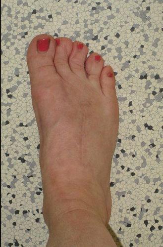 Klinisches-Bild-nach-Arthrodese-der-TMT-Gelenke-2-und-3