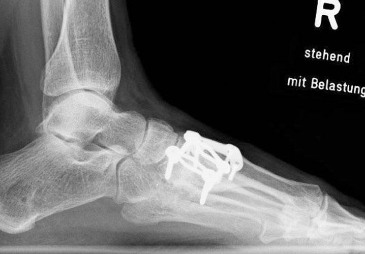 Röntgenbild-nach-Arthrodese-der-TMT-Gelenk-1-3_seitlich
