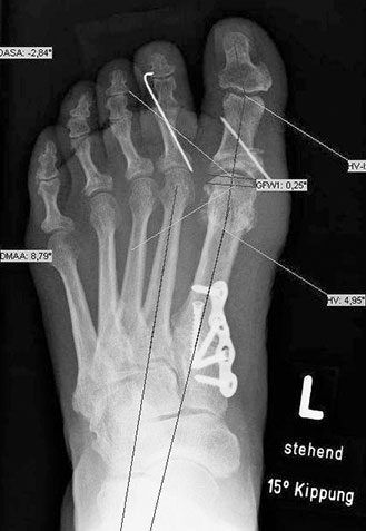 Röntgenbild nach Lapidus-Arthrodese mit einer plantaren Platte (Akin-Osteotomie der Großzehe)