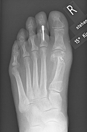 Röntgenbild nach Stabilisierung / Versteifung des Kleinzehenmittelgelenks mit einem Implantat.