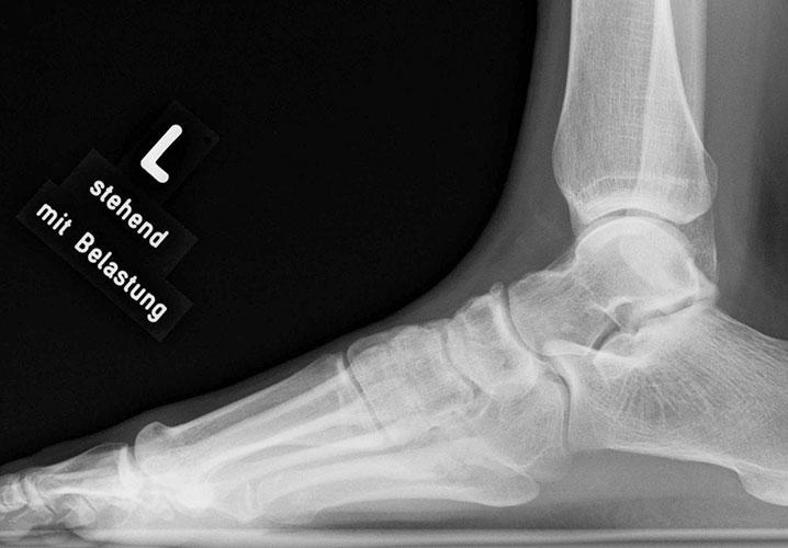 Röntgenbild-normaler-Fuß-seitlich