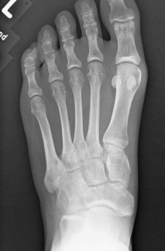 Röntgenbild-normaler-Fuß-von-oben