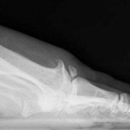 arthrose mittelfuß therapie