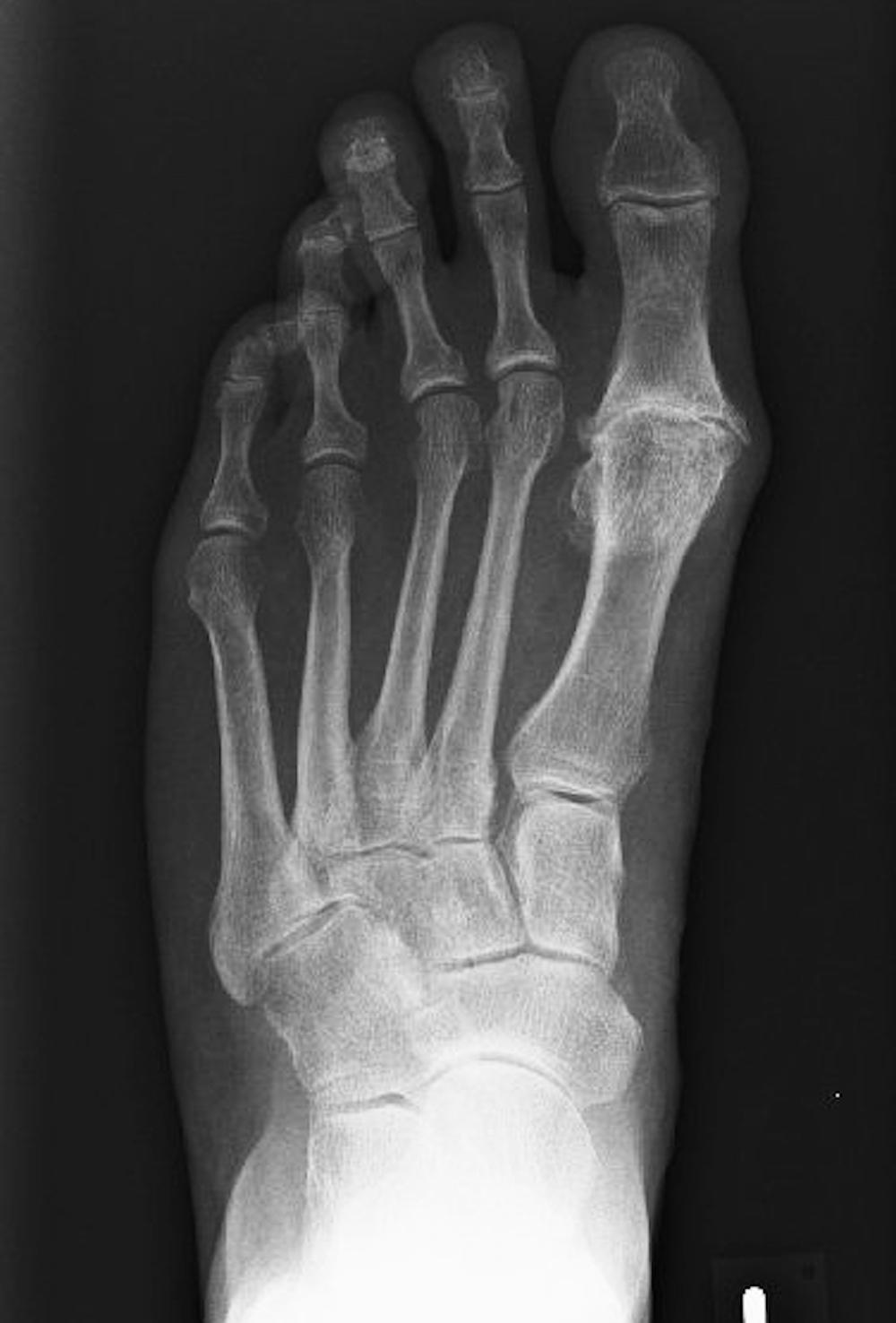 fortgeschrittener Verschleiß des Großzehengrundgelenkes im Röntgenbild. Ein Gelenkspalt ist im Röntgenbild nicht mehr erkennbar.