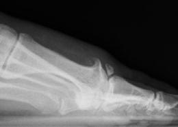 Röntgenbild mit streckseitigen Knochenausziehungen (Osteophyten) als Reaktion des Knochens auf die verminderte Belastbarkeit der Gelenkfläche.