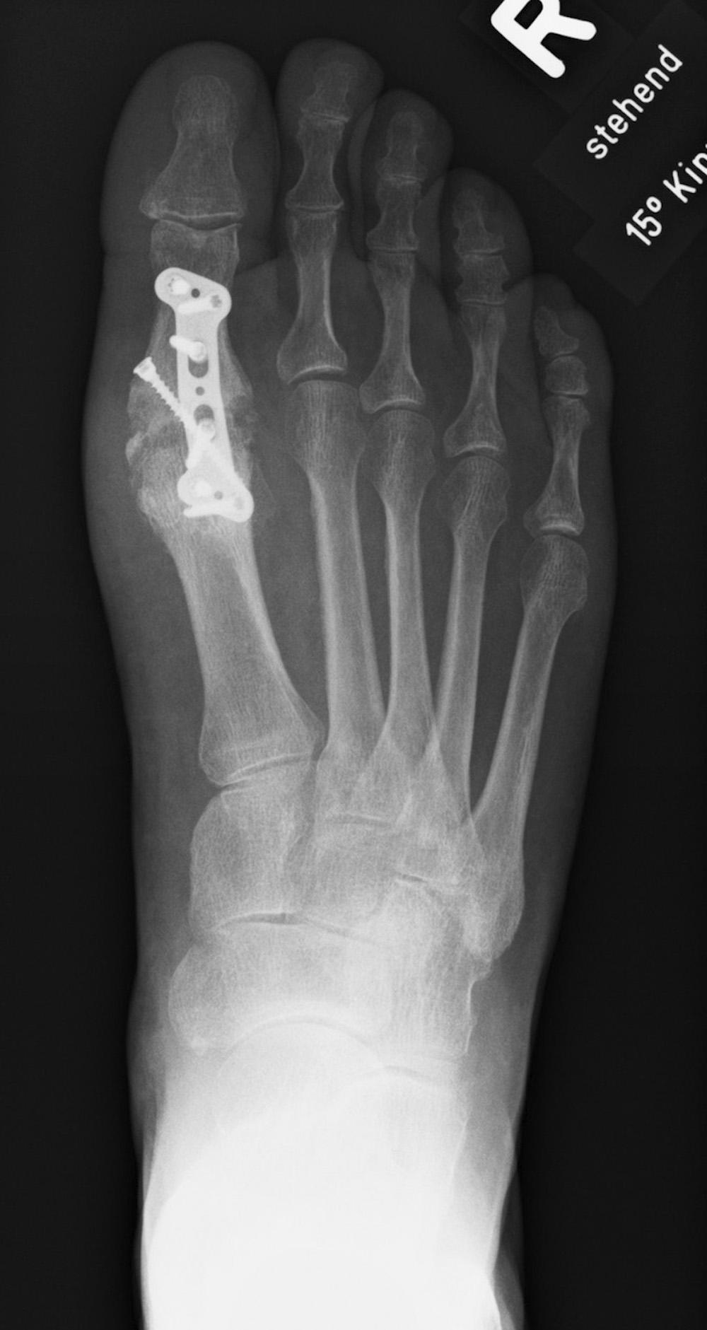 Röntgenbild nach Versteifung des verschlissenen Großzehengrundgelenks.