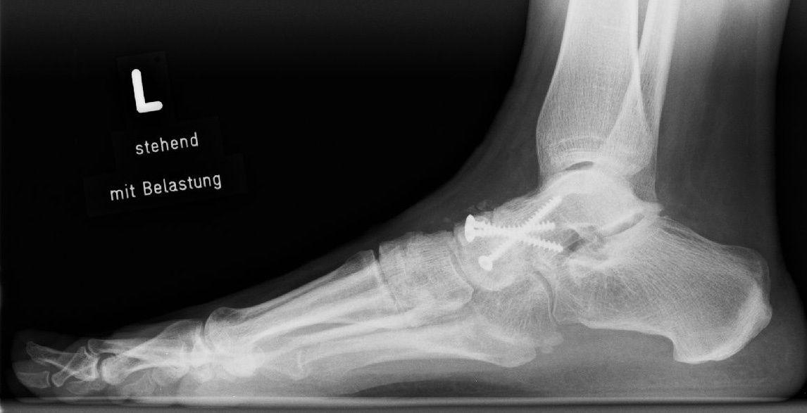 Röntgenbild nach Talonaviculararthrodese