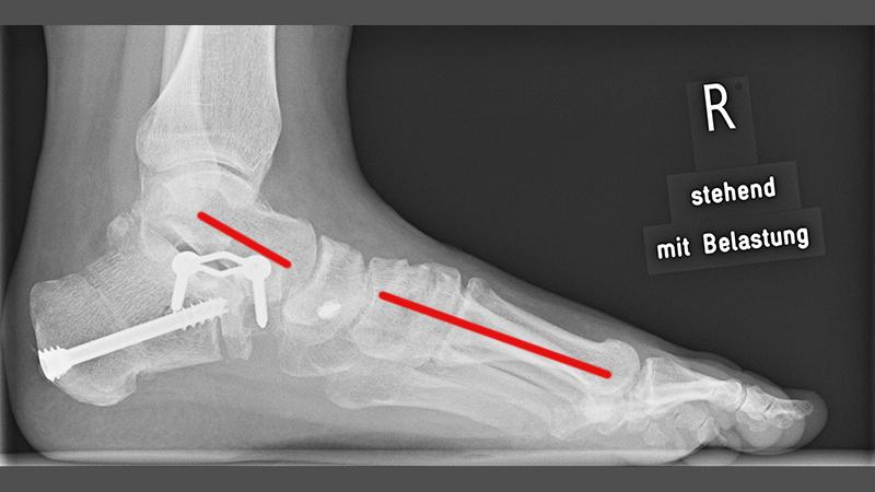 Knochenheilung Durch Belastung